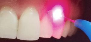 láser en odontología
