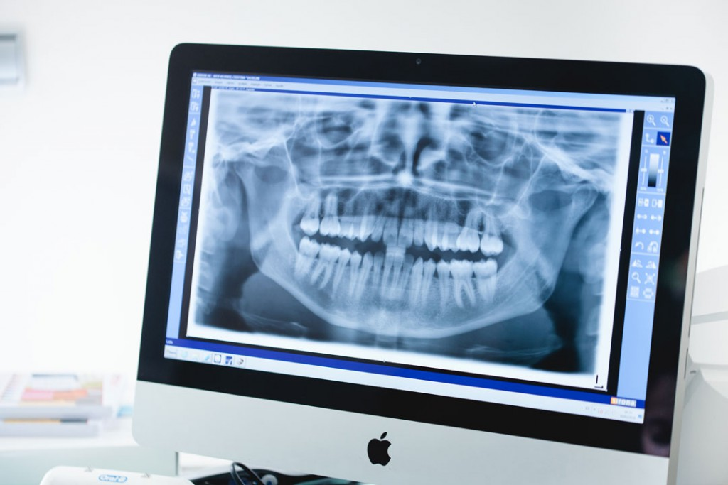 Muestra de radiografías