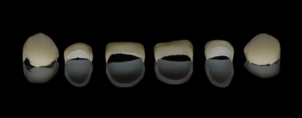 Diferentes tipos de carillas dentales