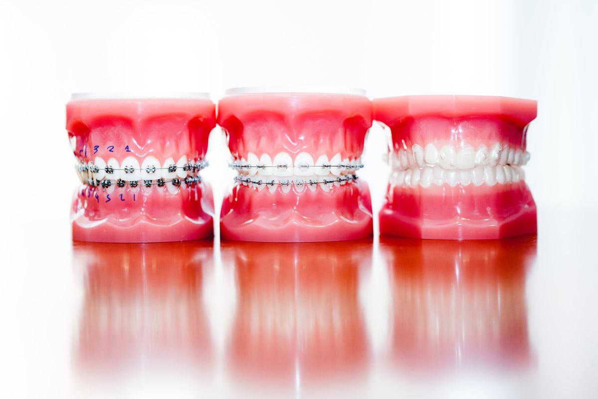 Los mejores especialistas de ortodoncia en Valladolid