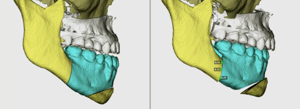 Imagen 3D de mandíbula en Clínica Galván Lobo