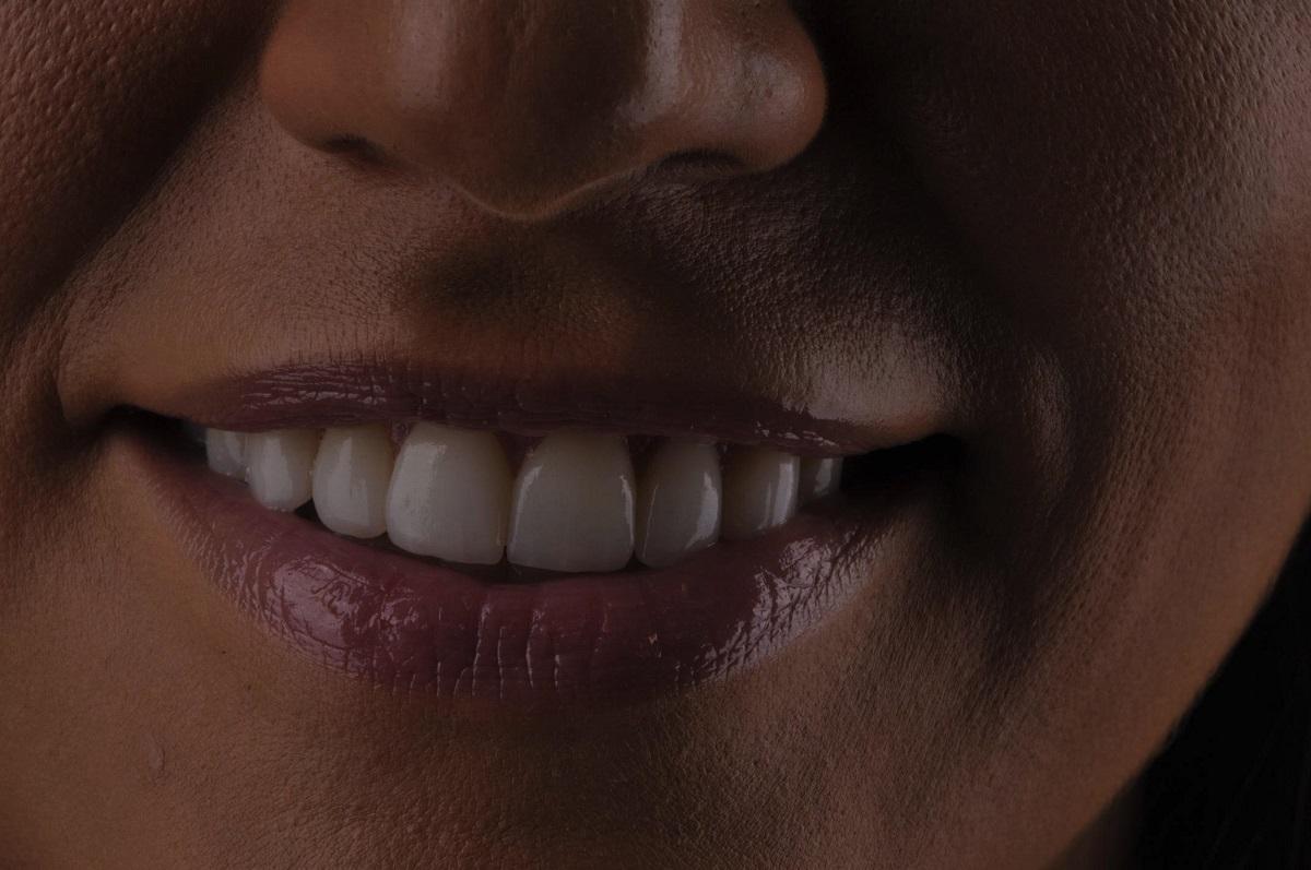 Carillas dentales en Valladolid