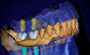 Cirugía guiada por ordenador para colocar implantes dentales