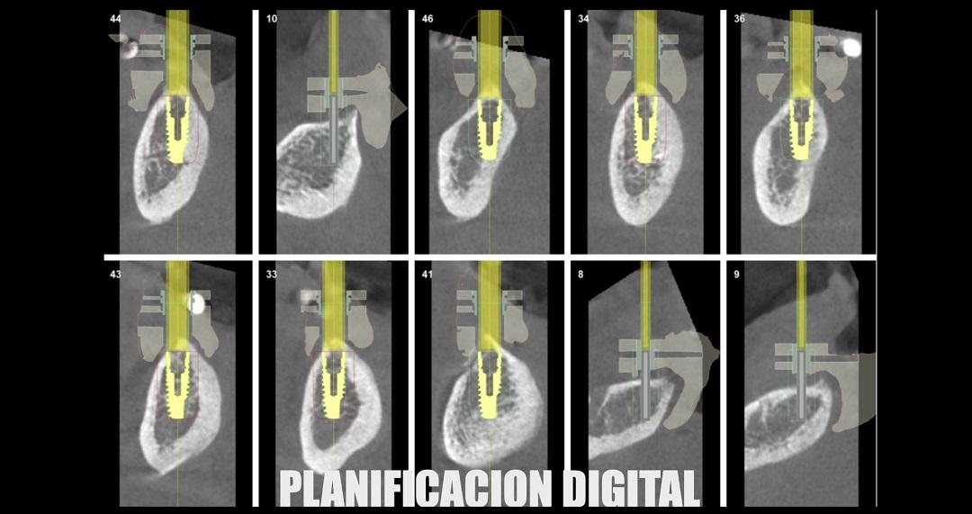 implantes dentales en Valladolid